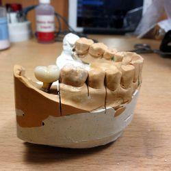 Зубные импланты — Лаборатория ideaDent