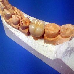 Фотогалерея зуботехнической лаборатории «ideoDent»